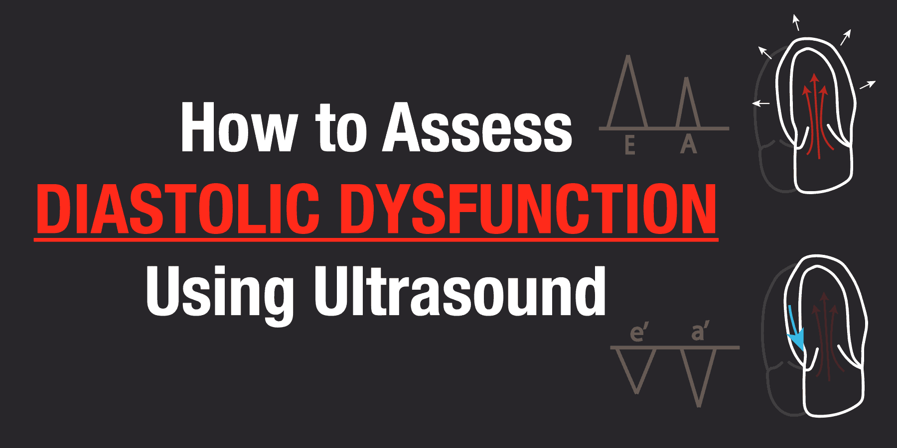 How to Assess and Grade Diastolic Dysfunction Using Ultrasound - POCUS 101